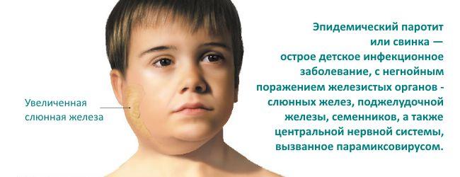 Инфекционные заболевания - Свинка