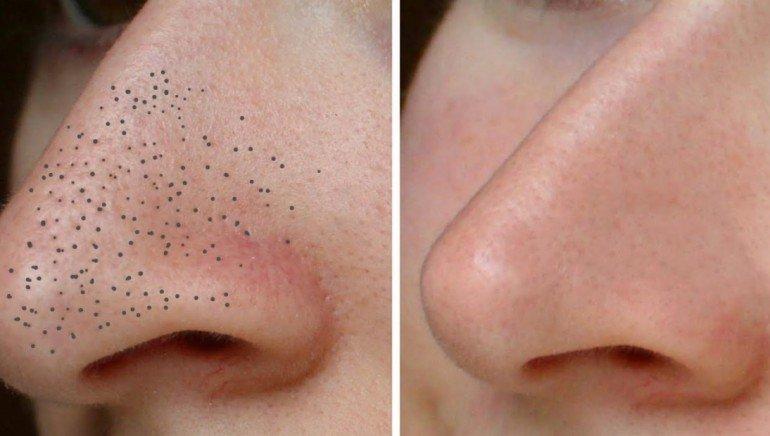 Черные точки на лице: советы по профилактике и лечению