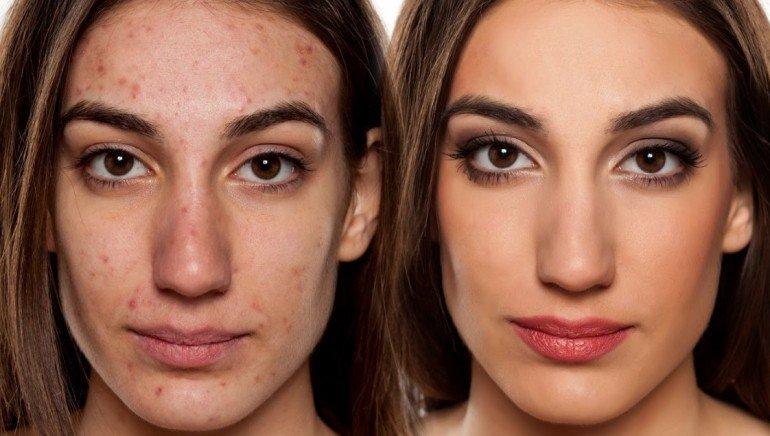 Как надо питаться, если вы обладаете проблемной кожей