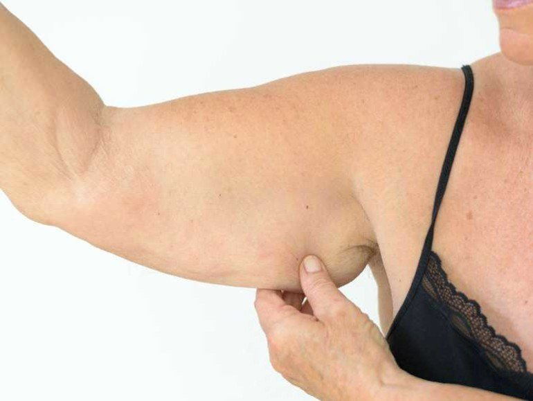 Живот-тряпочка и руки-крылья: как при диете избежать провисания кожи в проблемных местах