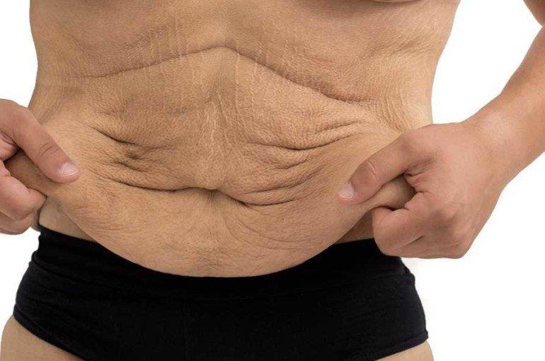 Как избавиться от дряблости мышц и кожи в области живота