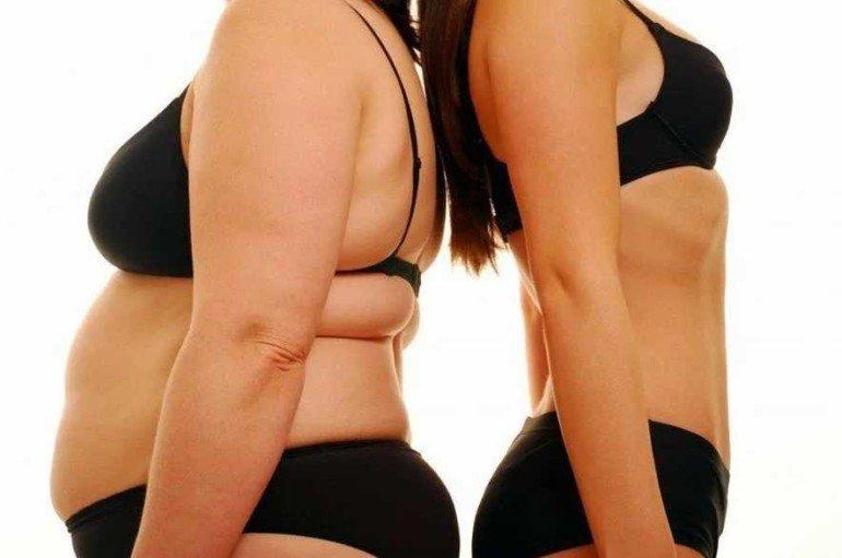 Что такое кортизоловый живот и как избавиться от неприятной особенности фигуры