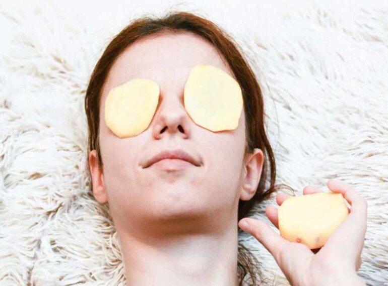 Как забыть о жирном блеске на лице: картофельное пюре для матирования кожи