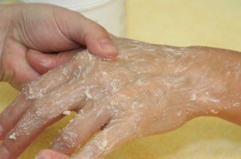 Питательная маска для рук, которая справится с шелушением