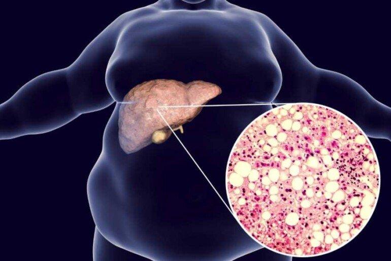 Как бактерии приводят к развитию ожирения