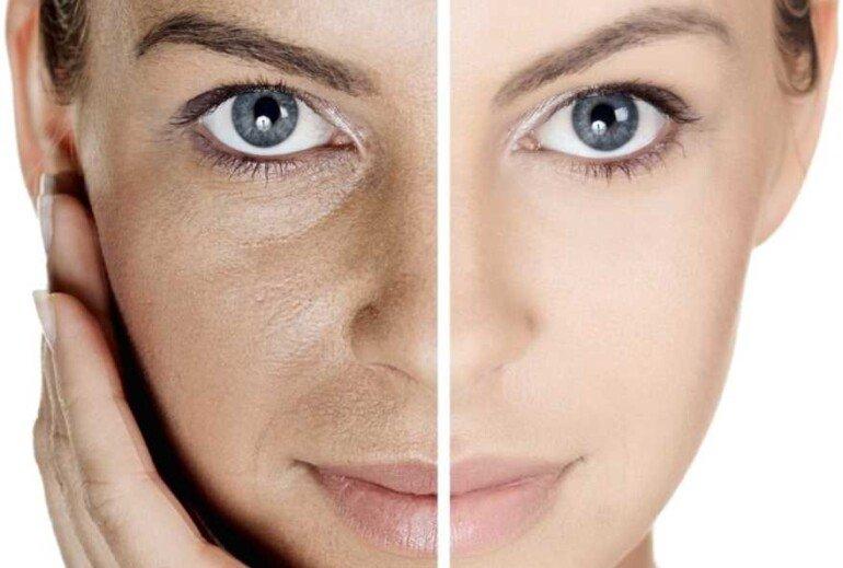 О каких проблемах в организме расскажут расширенные поры на лице